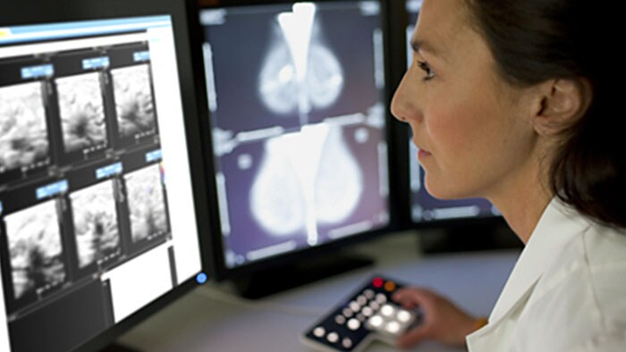 intellispace pacs advanced mammography